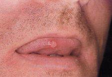 Aftosi orale
