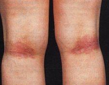 Dermatite atopica (DA)