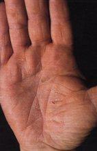 Dermatite irritativa da contatto (DIC)