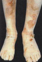 Epidermolisi bollosa distrofica (EBD)