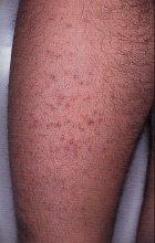 Eruzioni acneiformi