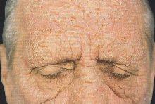 Fotodermatiti idiopatiche