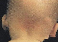Malformazioni vascolari