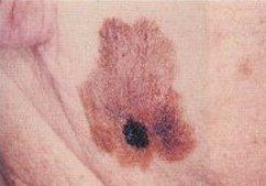 Melanoma cutaneo