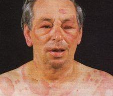 Orticaria cronica idiopatica