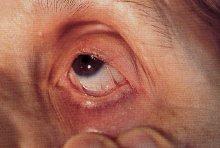 Pemfigoide cicatriziale