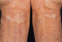 Sclerodermia sistemica