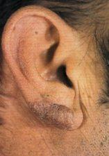 Tubercolosi cutanea