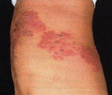 Virus della varicella Zoster